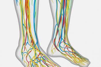 Peripheral Neuropathy Pain Eased with Magcell Microcirc